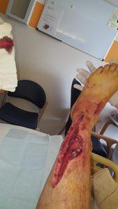 Wound Debridement on leg