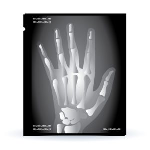 X Ray Of Hand FROI First Report Of Injury