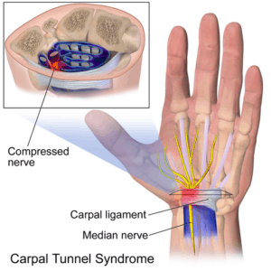 Hand With Carpal Tunnel Syndrome Illustrating