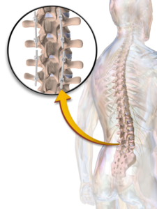 Instrumentation Back Surgery Image
