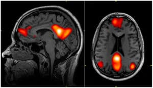 brain activity workers comp medical networks scan