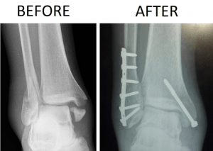 Blue Cross Blue Shiled Program Severe Ankle Fracture Xray